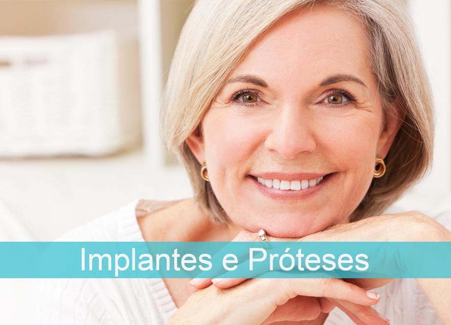 Implantes e Próteses